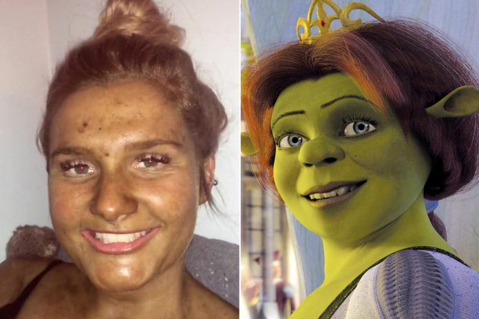 Woman looks like Fiona from 'Shrek' after fake tan turns her green