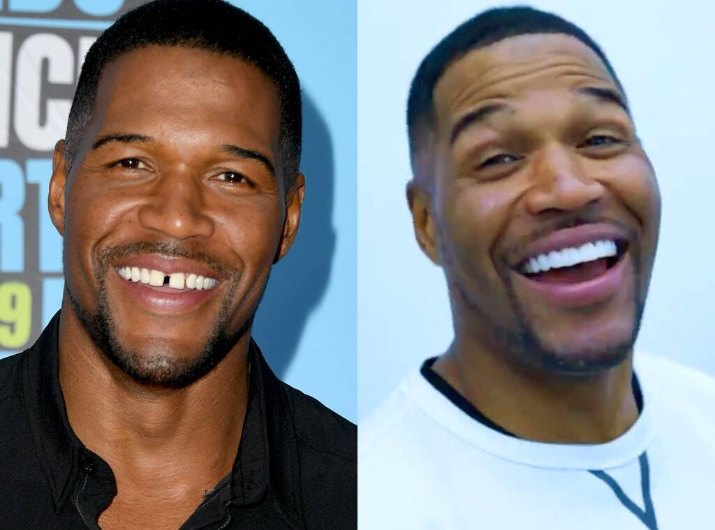 Michael Strahan Gets Rid Of His Iconic Tooth Gap